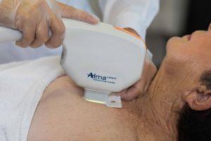 Tractaments de medicina Estètica amb tecnologia làser d'última generació: Harmony XL